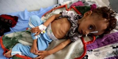 كيف أثرت الحرب الحوثية على صحة الأطفال العقلية؟