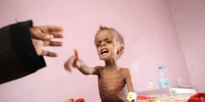 سوء التغذية في اليمن.. وباء حوثي تستأصله السعودية