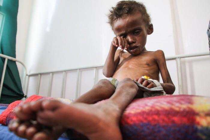 أزمة اليمن الغذائية.. كيف نهش الحوثيون في بطون المدنيين؟