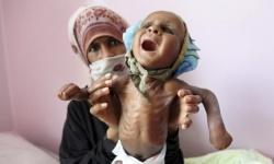 الخطة الغاشمة.. كيف يضاعف الحوثيون أعباء الحياة على السكان؟