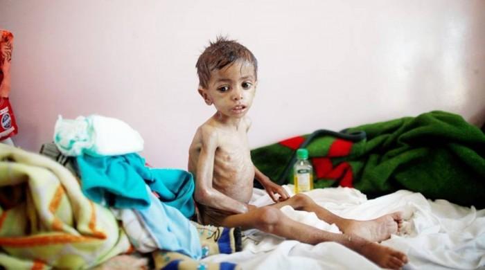 الموت يخطف طفلا لسوء التغذية في مسيمير لحج