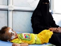 كورونا ومخاطر الأمر الغذائي.. غولٌ يلتهم اليمن