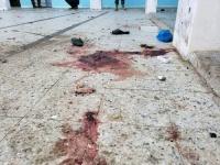 """مفوضية حقوق الإنسان: قصف سجن تعز """"جريمة حرب"""""""
