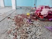 وفاة مصابة في القصف الحوثي لسجن تعز متأثرة بجراحها