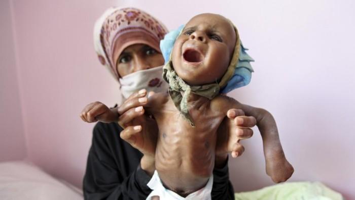 """مغامرة """"الماء"""" القاسية.. أطفال ونساء يصارعون الموت الحوثي"""