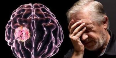 تعثر وترنح.. دراسة تكشف تأثير فيروس كورونا على وظائف الدماغ والجهاز العصبي