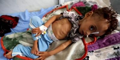 """الأطفال وسوء التغذية.. """"سرطان حوثي"""" يضاعف كورونا تغوّله"""