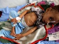 كورونا وأطفال اليمن.. أجساد منهكة تدفع الكلفة الباهظة