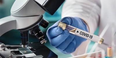 """علماء يطالبون بتطوير مضاد للإنفلونزا لوقف نمو """"كوفيد-19"""" بالجسم"""