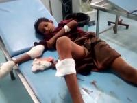 إصابة طفل في قصف حوثي لمنطقة المُتينة