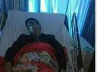 إصابة مساعد وزير الصحة الحوثي بكورونا