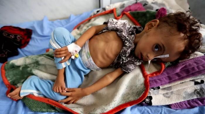 سوء التغذية.. رصاص حوثي غادر يخترق صدور الأطفال