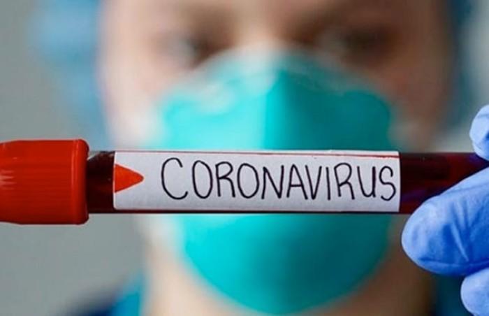 أمريكا تسجل 22,834 إصابة مؤكدة بفيروس كورونا و 754 وفاة