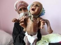 المشروعات الأممية في اليمن.. جهود دولية لسد رمق الجوعى