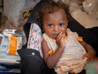 """""""الغذاء العالمي"""": مليونا طفل يعانون من سوء التغذذية"""