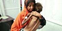 أطفال اليمن وسوء التغذية.. حرب حوثية لم تخلُ من المآسي
