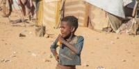 فحص سوء التغذية عند 1200 طفل بمأرب