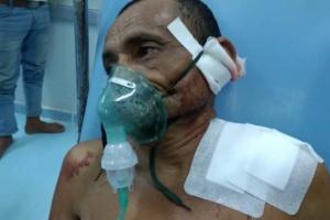 قناص حوثي يصيب مواطنا في حيس