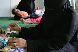 بمساهمات إيطالية.. علاج 15 ألف طفل من سوء التغذية الحاد