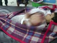 بدم بارد.. قناص حوثي يقتل طفلا شرق الحديدة