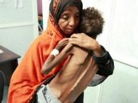 """سوء التغذية.. كيف فتكت الحرب الحوثية بـ""""بطون الأطفال""""؟"""