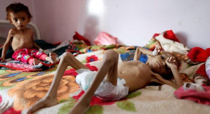 أطفال اليمن.. وقود الحرب وكلفتها الباهظة