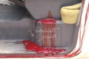 بسلاح آلي.. مجهولان يغتالان مواطنًا بلحج (صور)