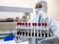 روسيا: الانتاج التجاري للقاح كورونا الجديد سيتوفر في سبتمبر