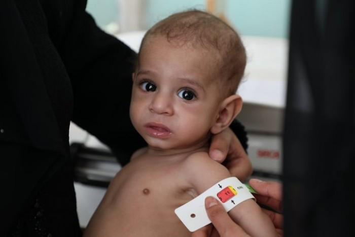الغذاء العالمي: تقديم الدعم للأمهات باليمن ضرورة