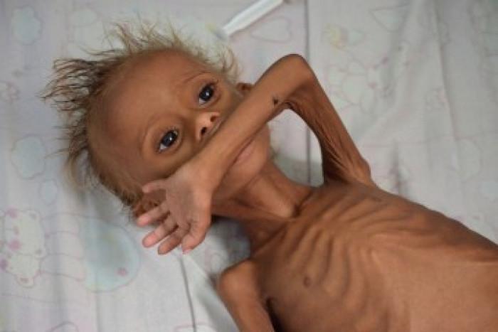 مجاعة اليمن.. كثرت التحذيرات والوجع واحد