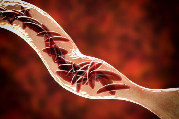 بالتفاصيل.بشرى سارة لـ20 مليون مريض بفقر الدم المنجلي