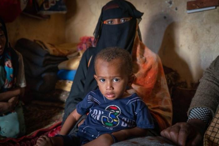 الغذاء العالمي يُحذر من زيادة معدلات سوء التغذية باليمن