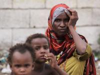 الجوع في اليمن.. وقودُ حربٍ كلفتها البطون الخاوية