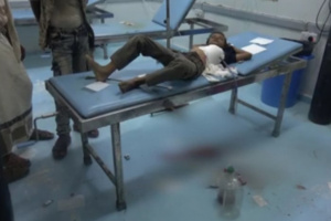 في واقعة جديدة.. رصاص الحوثيين يصيب طفلا في حيس