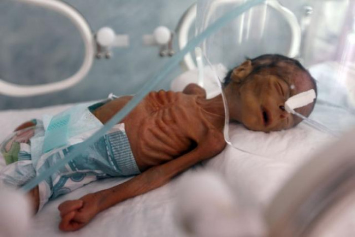الرضَّع والحرب الحوثية.. أجسادٌ صغيرة طالها إرهاب المليشيات