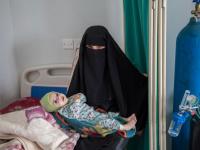 الصحة العالمية: 7.4 ملايين شخص يعانون سوء التغذية