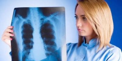 كورونا يهدد مرضى سرطان الرئة