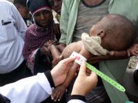 الحرب الحوثية ودمار الاقتصاد.. سكانٌ بين المطرقة والسندان