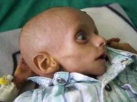 نقص الغذاء في اليمن.. لماذا خرجت الأمور عن السيطرة؟