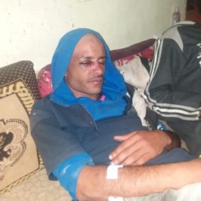 عصابة حوثية تعتدي على 3 مواطنين بالخناجر بإب