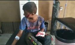بـ 17 ضحية.. مليشيا الحوثي ترتكب مجزرة مروعة في الدريهمي