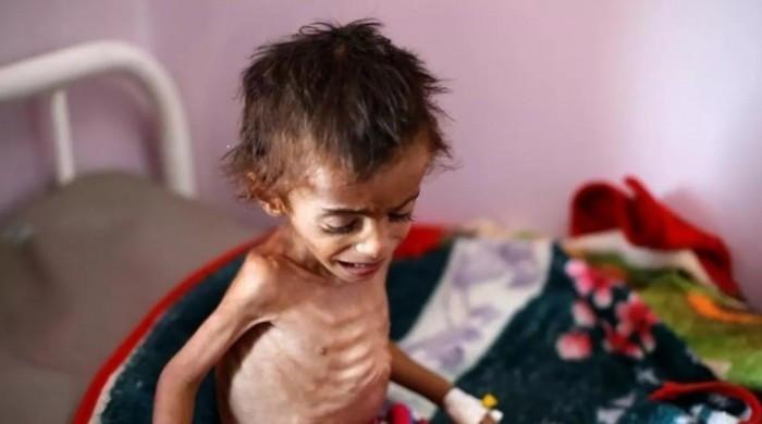 """المجاعة المرعبة.. كيف ينجو اليمن من """"الخطر الكبير""""؟"""
