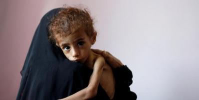 الخارطة البريطانية.. هل تنتشل اليمن من المجاعة المحدقة؟