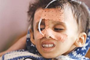 جرائم الحوثي ضد الأطفال.. إرهاب غاشم يسيل دماء الأبرياء الصغار
