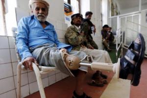 ألغام الحوثي التي تسرق الأعضاء.. إرهاب حوثي يصنع جيلًا من المعاقين