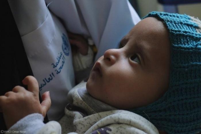 الصحة العالمية تدعم 6 مرافق صحية بإب