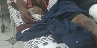 في جريمة حرب.. سقوط ضحيتين لقصف حوثي على الدريهمي