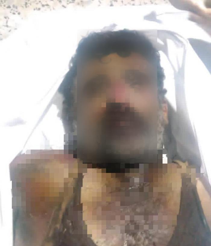 بعيارين في القلب.. تصفية جندي جنوبي مختطف بأبين