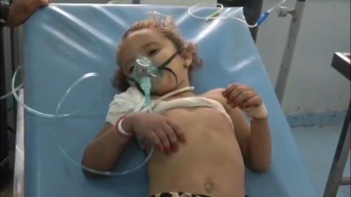 شاهد.. رصاص الحوثيين يهشم عظام طفلة في حيس