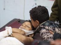 دماء تُسال وأرواح تزهق.. إرهاب حوثي يصطاد الأطفال